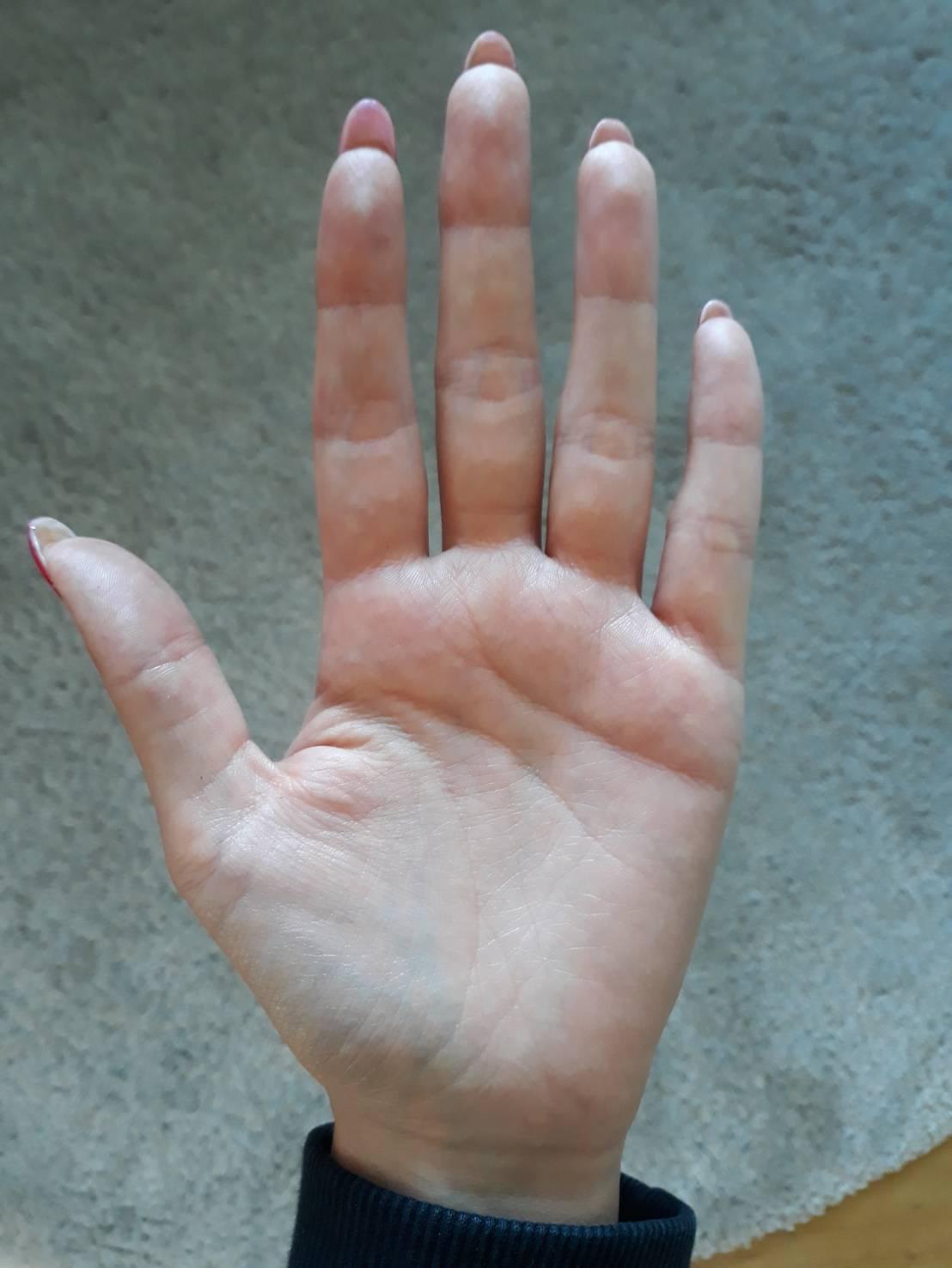 手の平の写真 手相鑑定